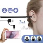 3 in 1 USB Ear Cleaning Endoscope Earpick With Mini Camera HD Earwax Removal