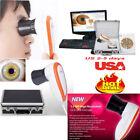 CE USA 5M pixels USB Iriscope Eyes Iris Analyzer Iridology camera +Iris Software