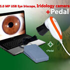 5.0MP USB Pro DigitaI Eye iriscope Iridology Iris Camera + Pro Software + Pedal